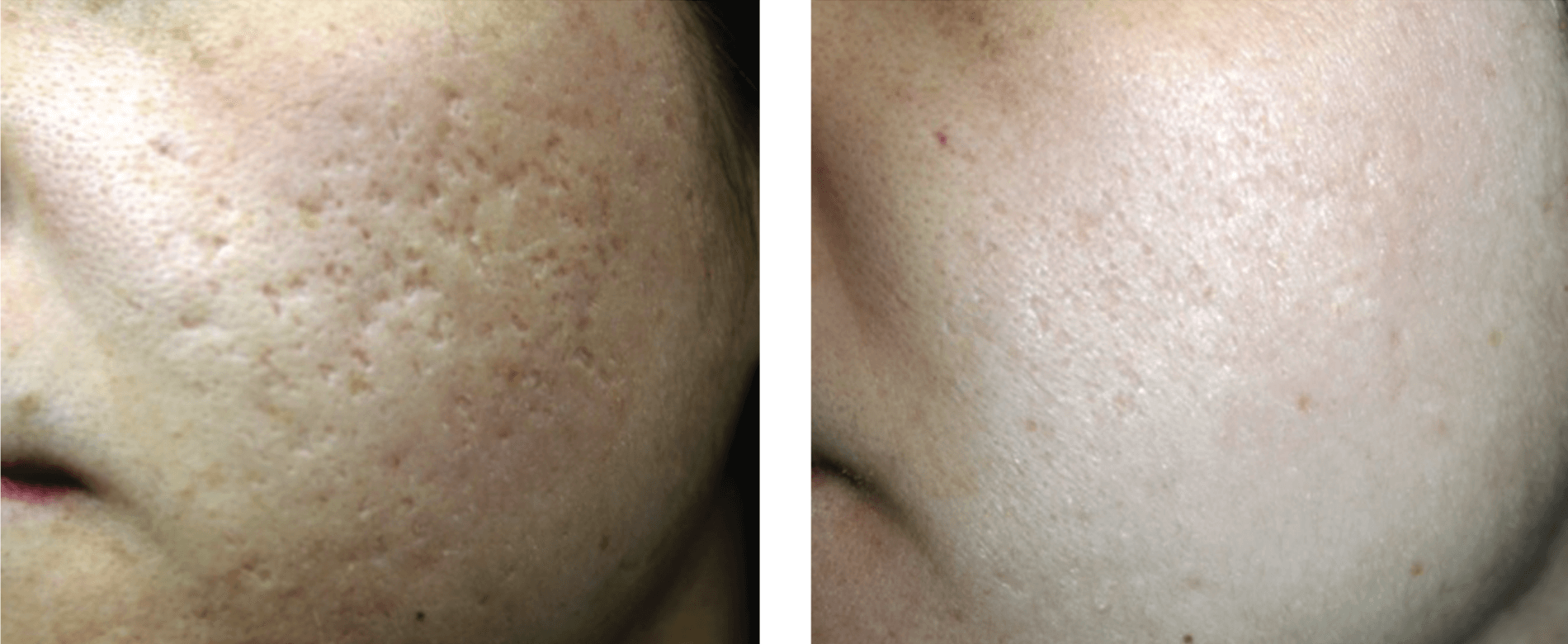 Post 3 treatments - Results may vary from person to person.