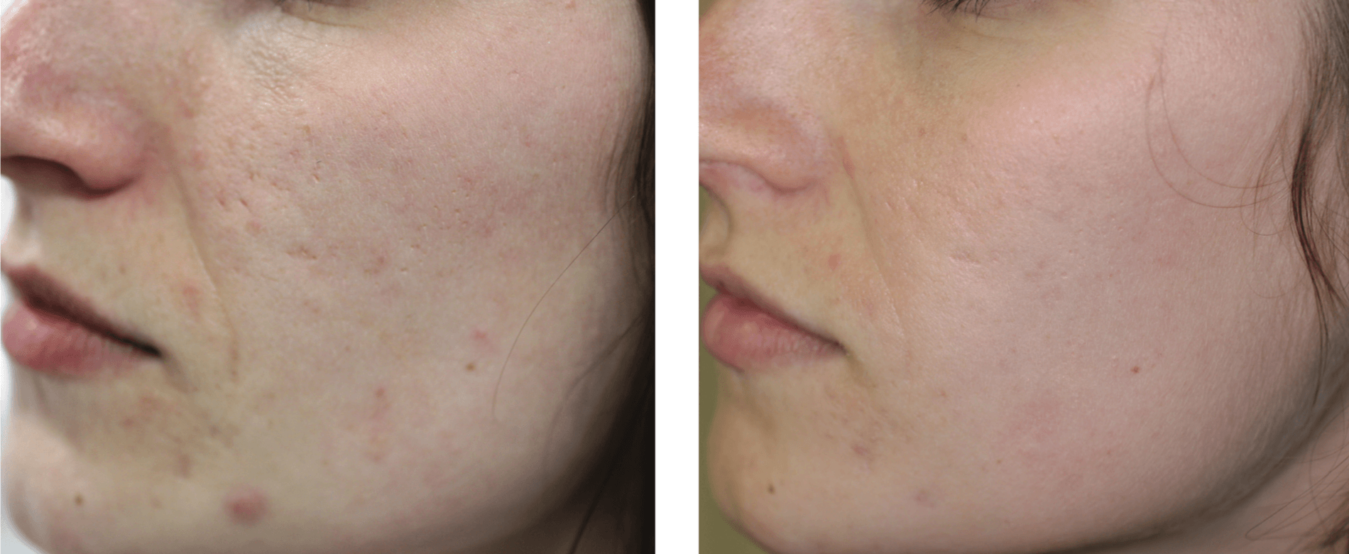 2 weeks Post 3 treatments - Results may vary from person to person.